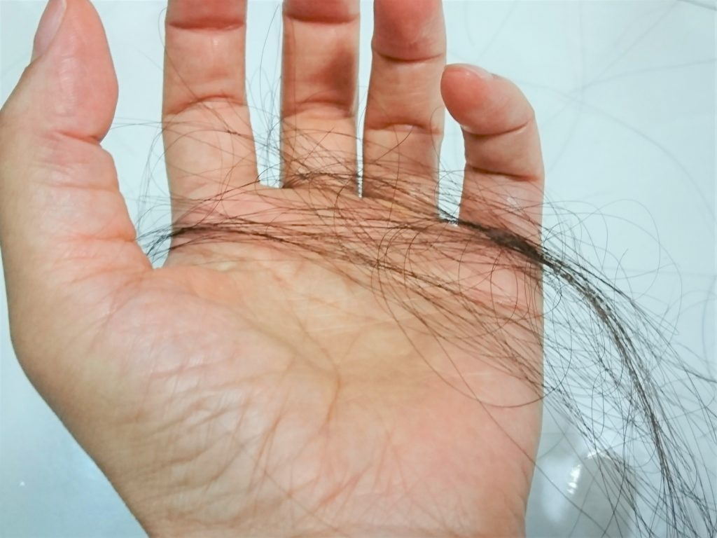 薄毛治療薬のフィンカーの効果を最大限にする方法!もう薄毛で悩まない!?