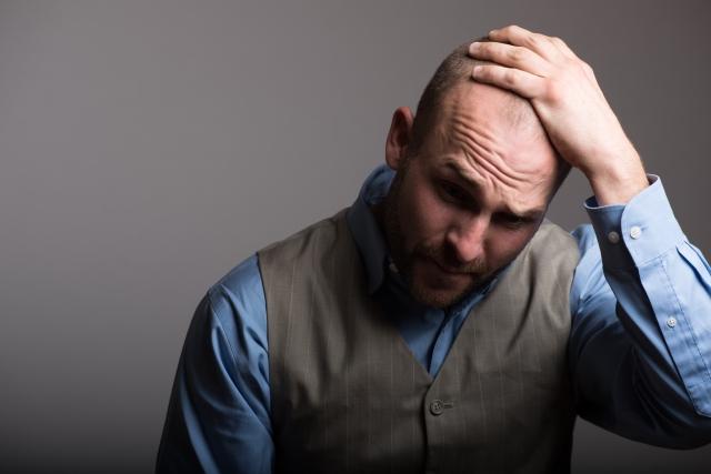 フィンカーがカバーできない薄毛を治療する最強の方法