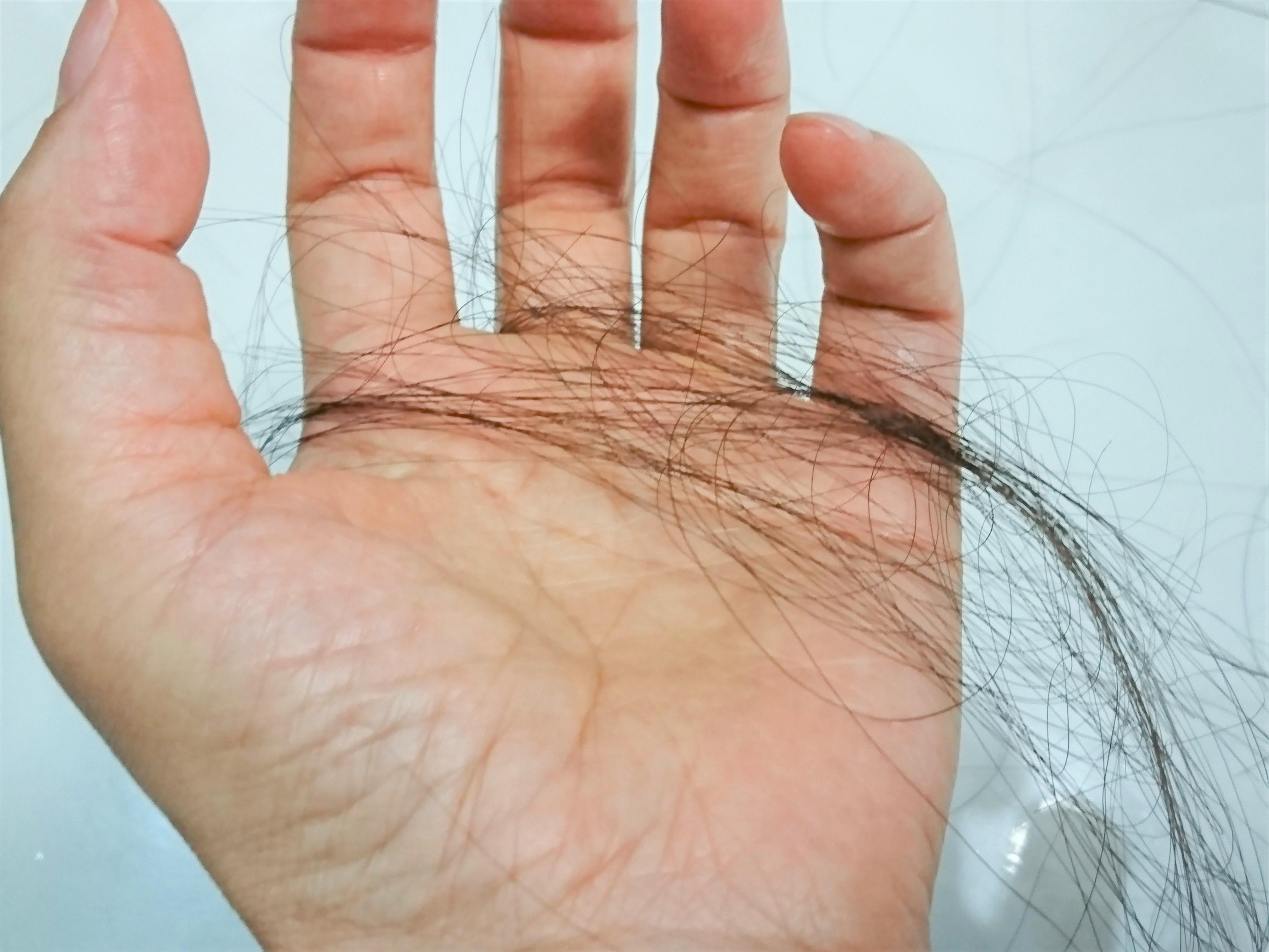 薄毛治療薬のフィンカーの効果を最大限にする方法!
